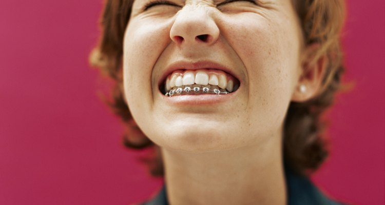 Dental responsibilities remain even after braces come off.