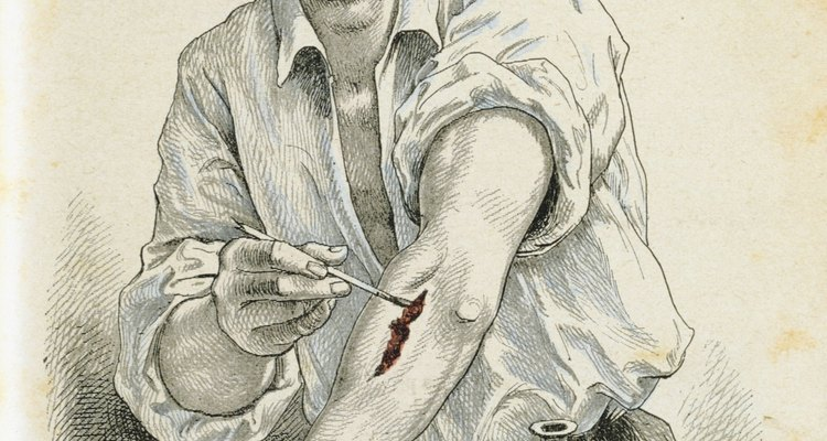 Nossa pele e quaisquer feridas precisam de cuidados especiais para evitar infecções