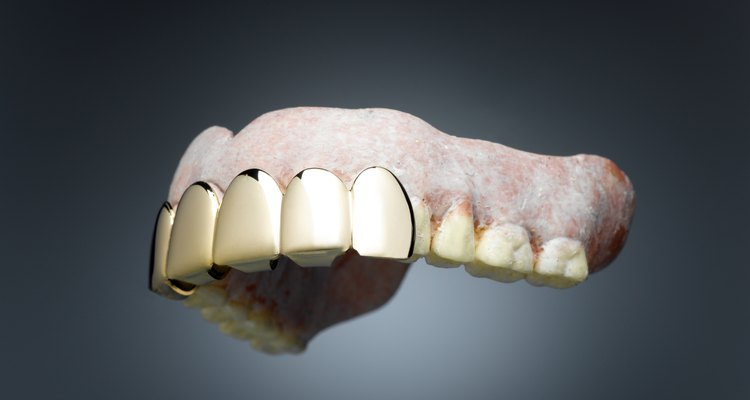Broken dental appliances can often be temporarily fixed with glue.