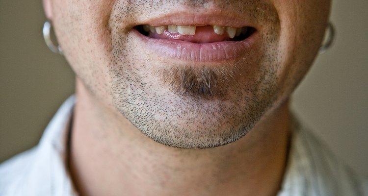 Simula que has perdido un diente con cera negra en pasta.