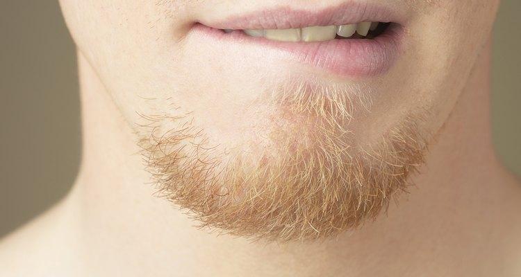 Si constantemente tienes los labios muy resecos, hay muchas razones para esta condición.
