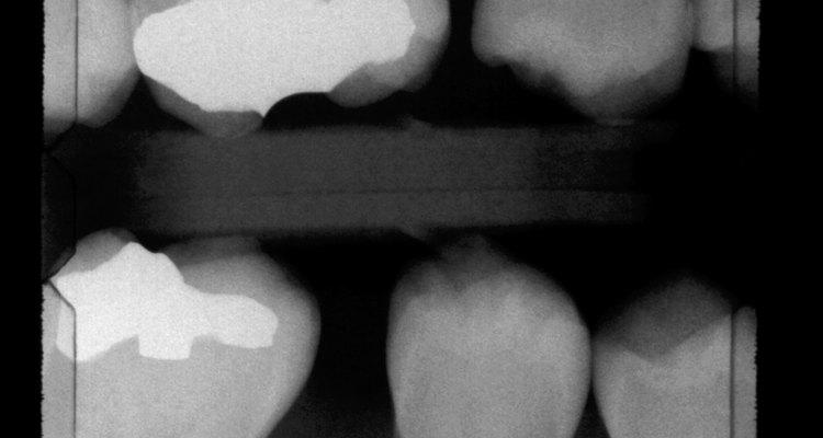 Los problemas como caries dental, gingivitis y aglomeración de los dientes son las tres razones más comunes por las que se realiza la cirugía.