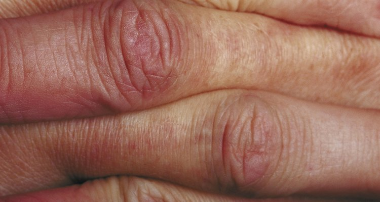 Knuckle pads usually develop in the middle joint of the finger.