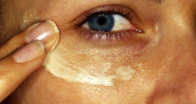 O metronidazol creme pode ser usado para o tratamento da acne rosácea