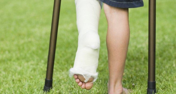 O pé pode inchar após a fratura de um osso da perna