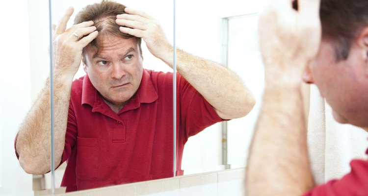 Thinning Hair in Middle Age
