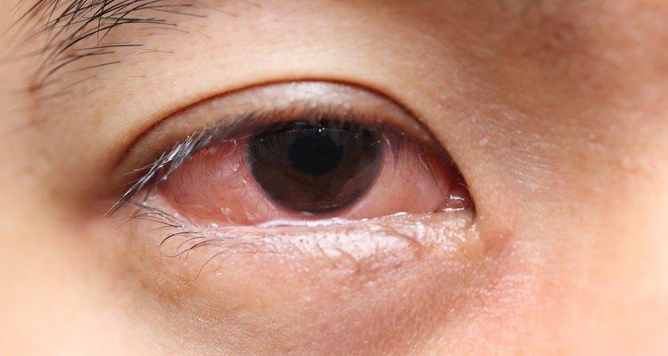 red sore allergy eye