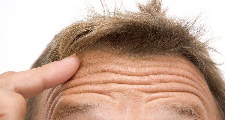 Recrecimiento del pelo.