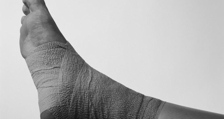 Envolver el tobillo con vendajes puede ayudar a disminuir la hinchazón.