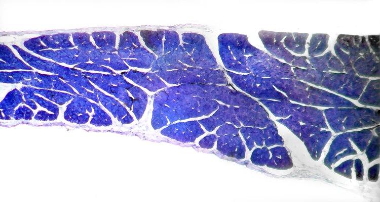 Teñido en azul, este tejido muscular muestra a la fascia profunda en blanco.