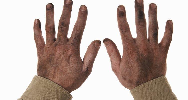 Mãos calejadas e sujas precisam de cuidados especiais