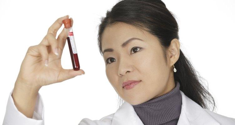 En japón existen el tipo de sangre A, B, AB y O.
