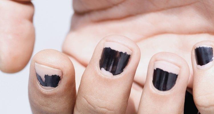 El esmalte de uñas quebrado es una molestia.