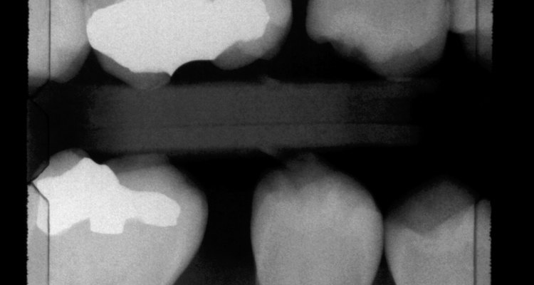 Bitewing X-rays help to illustrate decay between two teeth.