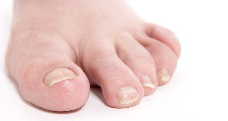 A unha encravada geralmente ocorre no dedão do pé