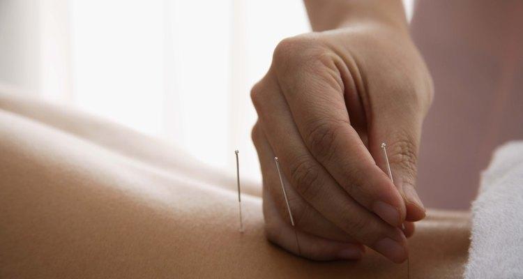 A acupuntura permite uma recuperação mais rápida