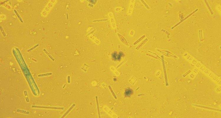 Las diatomeas son un tipo de fitoplancton de agua dulce.