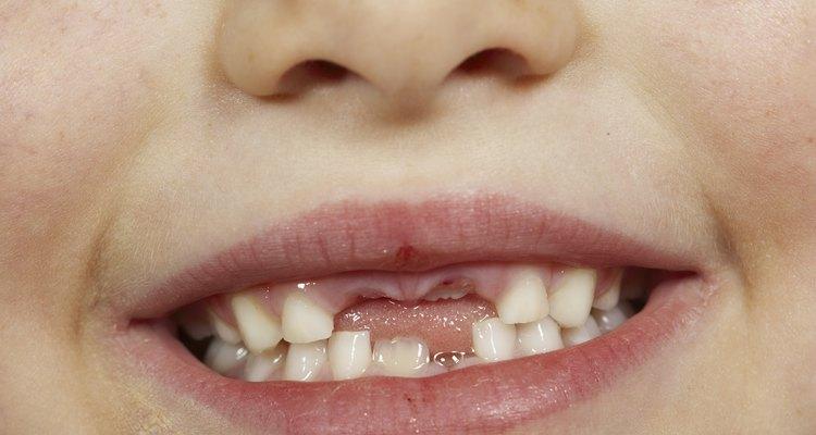 Aunque los padres crean el mito del hada de los dientes por amor, eventualmente tienes que admitir la verdad.