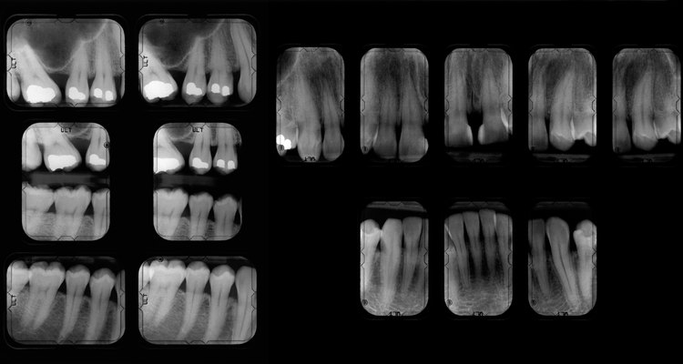 X-rays help illustrate the number of decayed, missing and filled teeth.