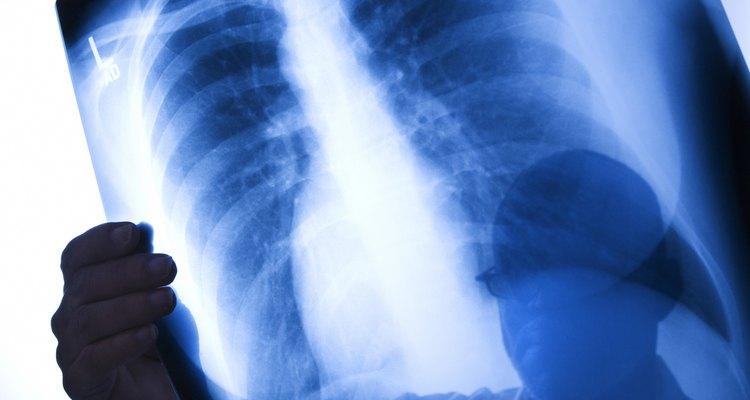 Los rayos X ayudan en el diagnóstico de enfermedades.