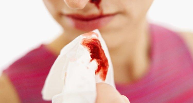 Las hemorragias nasales luego de correr o hacer deportes son comunes.
