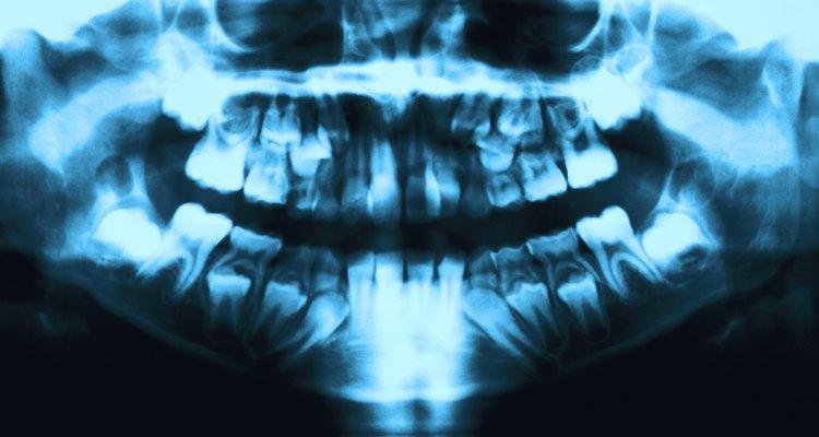 Raio-X de uma arcada dentária