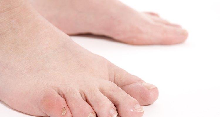 El cuidado de un dedo del pie hinchado depende de cuál sea la causa de la enfermedad.