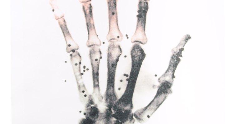 Os dedos são conhecidos cientificamente como falanges