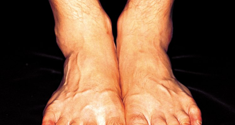 Saddle bone deformity is recognised by a bump on the top of the foot.