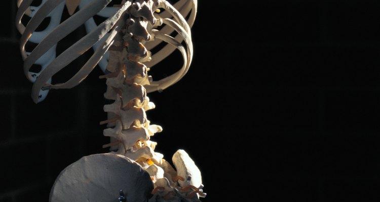 A escoliose é uma condição na qual as curvas da coluna ficam desalinhadas