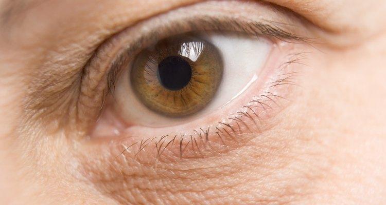 É melhor consultar o seu médico antes de tentar qualquer tratamento em seu olho