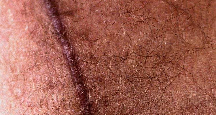 Contrariamente a las cicatrices normales, las queloides tienden a inflarse ganando longitud y volumen con el tiempo.