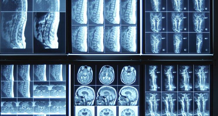 As radiografias permitem detectar objetos ocultos no corpo