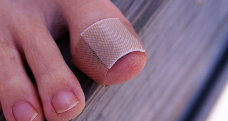 Tratar heridas en las uñas.