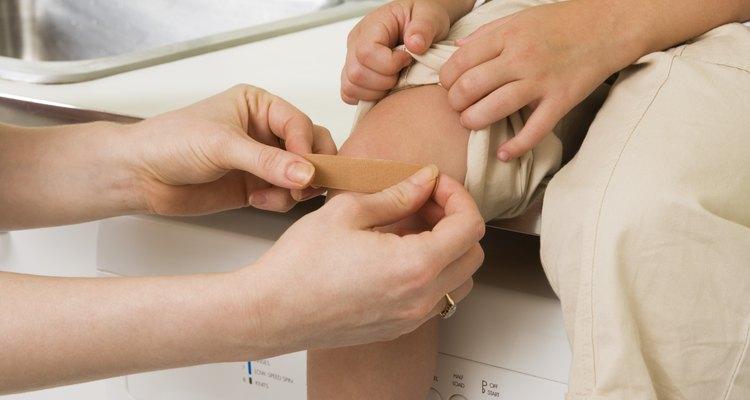 O cuidado em fechar o ferimento ajuda na prevenção de infecções.