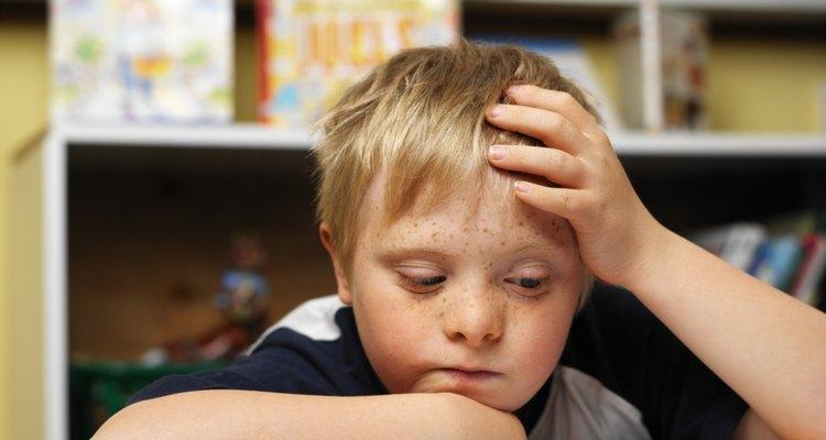 As pessoas com síndrome de Down possuem pregas epicânticas
