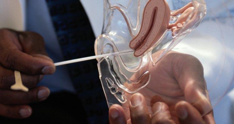 Miomas uterinos crescem dentro e fora do útero