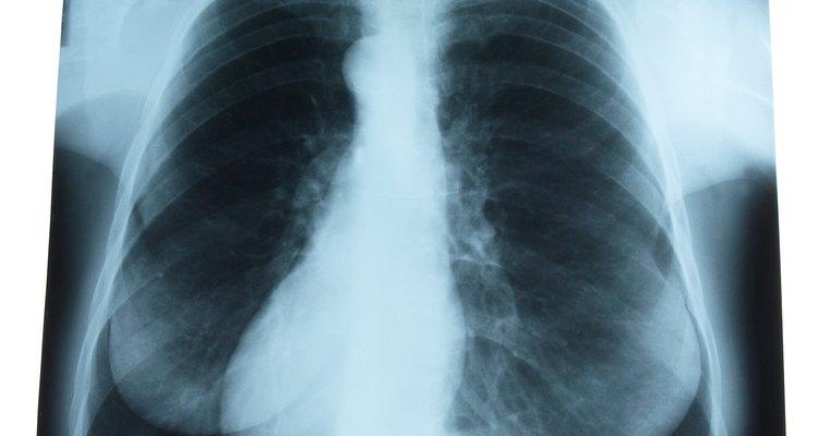 El esternón es un hueso del tórax.