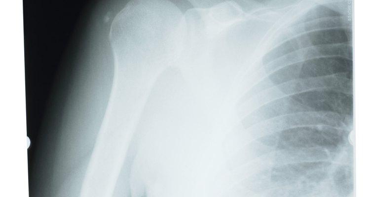 """O ombro é um tipo de articulação conhecida como """"bola e soquete"""""""