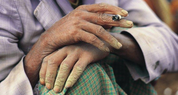 Las náuseas son un efecto secundario común al fumar.