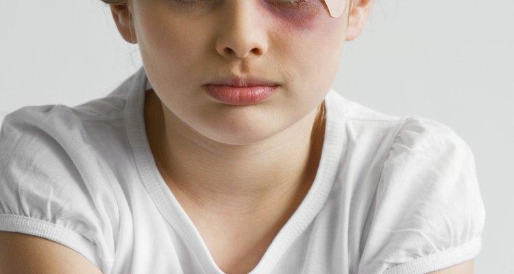 El abuso es la causa principal por la que los padres pierden la custodia de los niños.