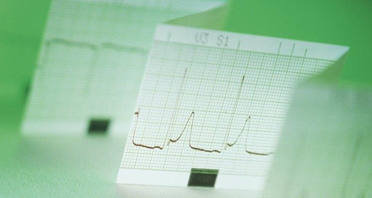Análise FFT revisa freqüência do sinal