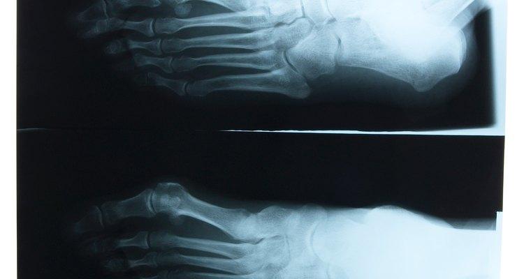 A recuperação de uma cirurgia de tornozelo deve ser muito cuidadosa