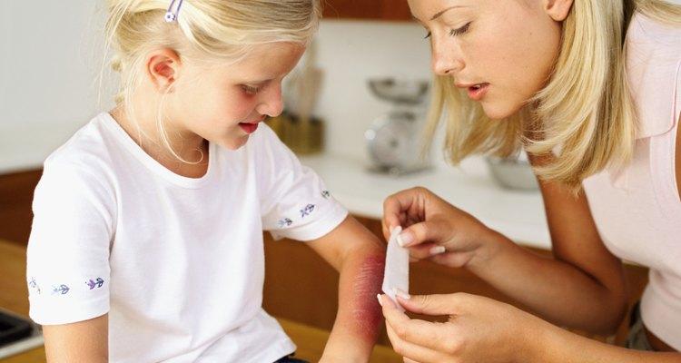 Cubre las quemaduras con una gasa o un vendaje para evitar la infección.