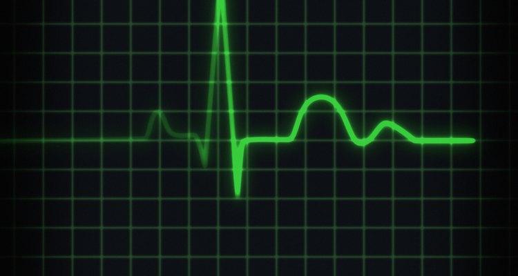 Frequência cardíaca representada na tela do monitor