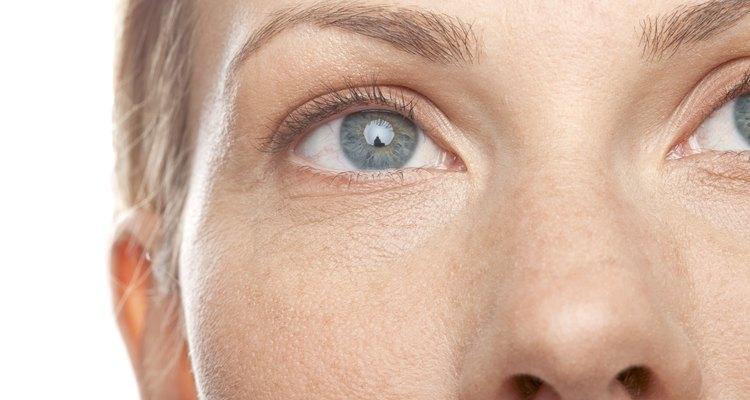 O excesso de sebo no nariz pode causar cravos e poros dilatados