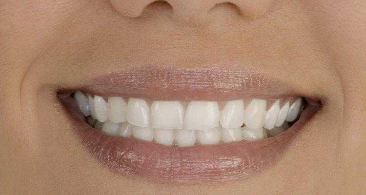 Utilize um método simples para clarear suas dentaduras de porcelana
