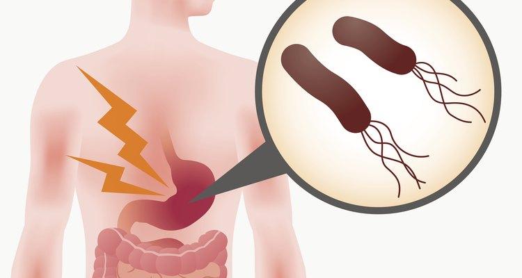 Helicobacter pylori síntomas y tratamiento