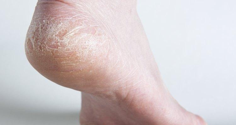 Cómo eliminar la resequedad de los pies ¡Dile adiós a las grietas!