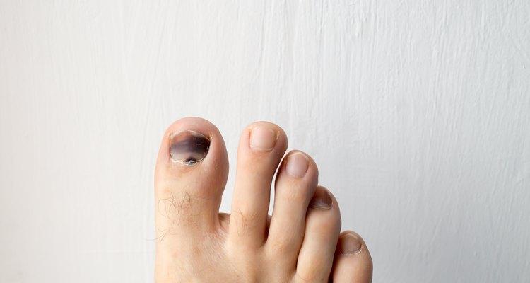 Causas de las manchas negras en las uñas de los pies